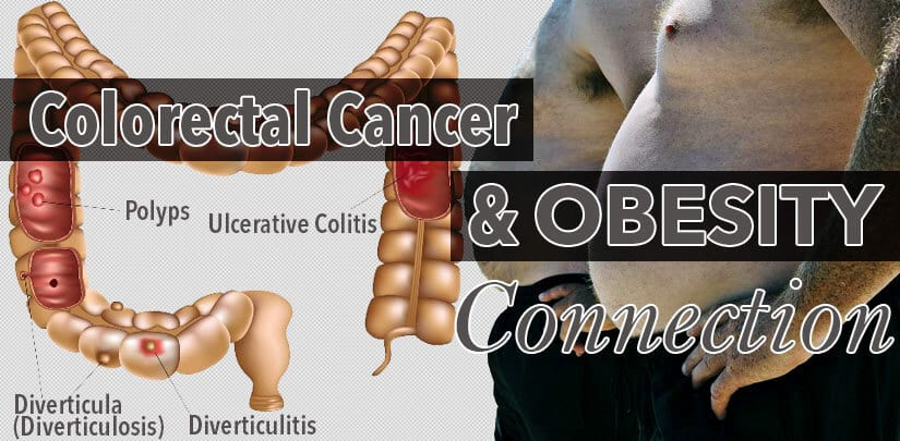 Obesity and Colon Cancer Link